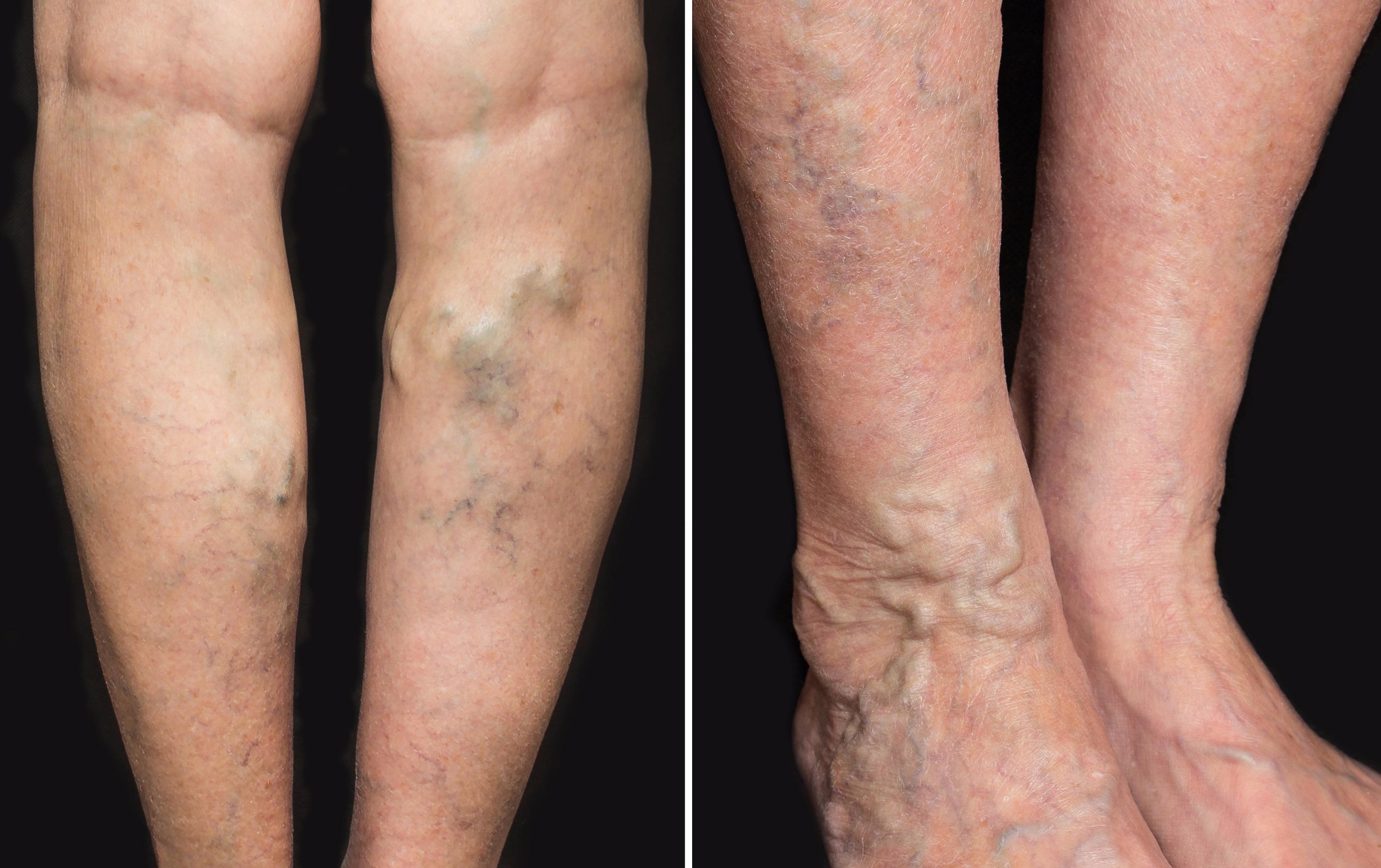 varicele pot provoca ulcere